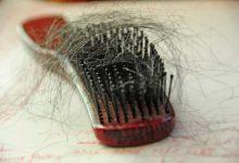 صورة اسباب تساقط الشعر : 17 سبب و 10 طرق علاج
