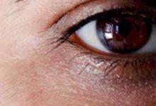 صورة علاج الهالات السوداء تحت العين في يوم (مجربة سهلة)
