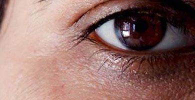Photo of علاج الهالات السوداء تحت العين في يوم (مجربة سهلة)