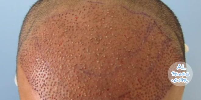 عملية زراعة الشعر - تقنية الاقتطاف