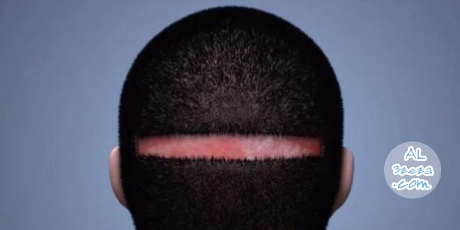 عملية زراعة الشعر - تقنية الشريحة