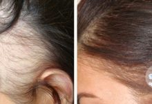 عملية زراعة الشعر للنساء