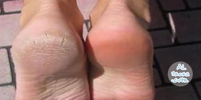علاج تشقق القدمين بزيت الزيتون