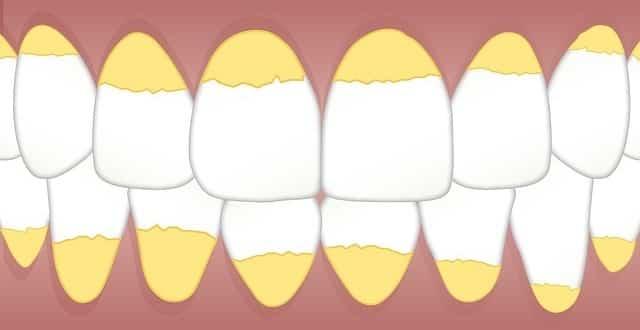 طريقة تنظيف الاسنان من الاصفرار