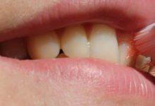Photo of طريقة تنظيف الاسنان من الاصفرار والجير في المنزل بسرعة