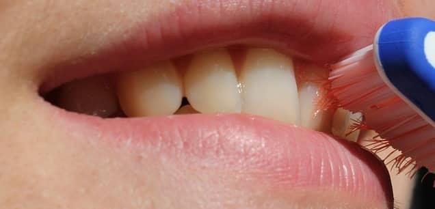 طريقة تنظيف الاسنان من الاصفرار والجير وتبييضها في يوم واحد