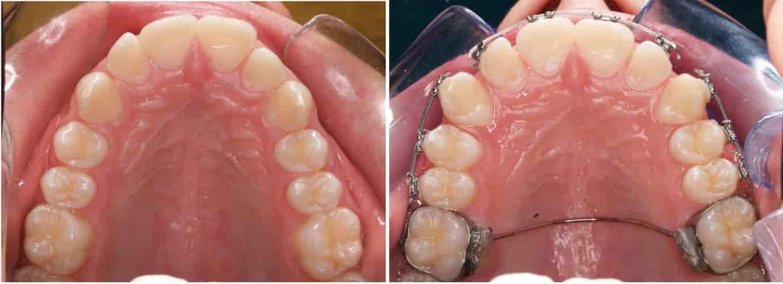 تقويم الاسنان الثابت
