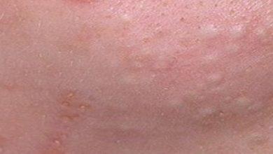 علاج الحبوب تحت الجلد
