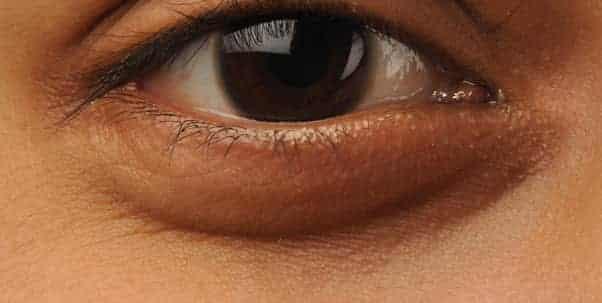 طريقة تنظيف البشرة الدهنية من الهالات السوداء