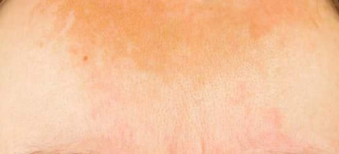 طريقة تنظيف البشرة الدهنية وتوحيد لونها