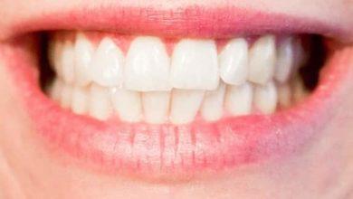 افضل طريقة لتبييض الاسنان الصفراء