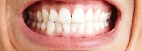 احتكاك الأسنان