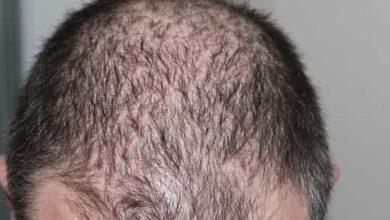 الفرق بين زراعة الشعر الطبيعي والشعر الصناعي