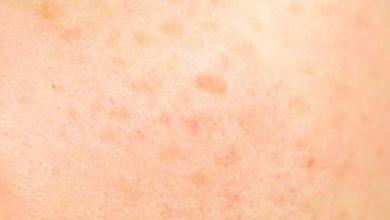 صورة افضل كريمات و وصفات لازالة البقع البنية من الوجه في اسبوع على الأكثر