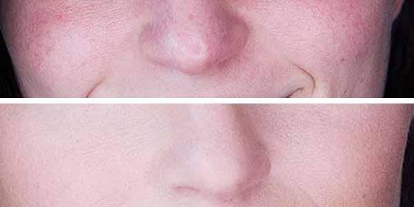 طريقة وضع كريم الاساس على الوجه