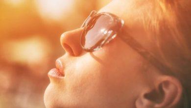 علاج حروق الشمس للوجه واليدين والجسم