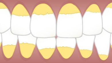صورة أهم 10 نصائح بعد تنظيف الاسنان من الجير و الأكل بعده