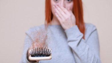 صورة فوائد زيت جوز الهند لتساقط الشعر وطريقة استخدامه