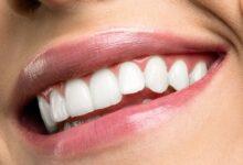 تبييض الاسنان بالزوم