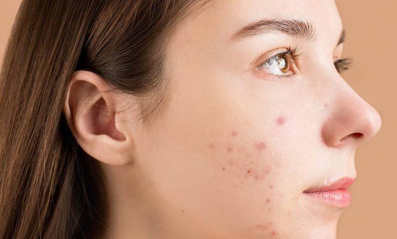 علاج احمرار الوجه بسبب استخدام كريم ميلانو فري